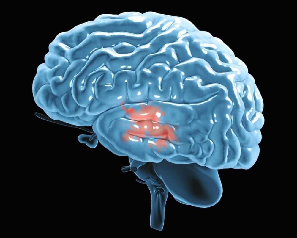 Azathioprine in Parkinson's