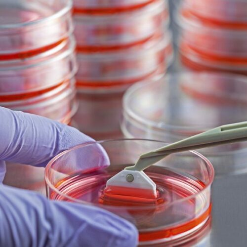 GDNF and Cell Transplantation